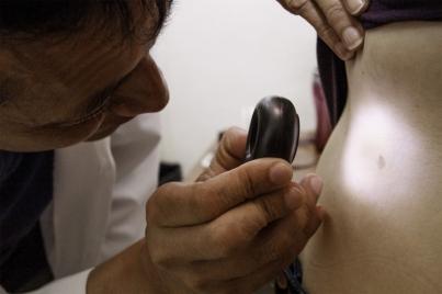 Mexicanos tienen alta susceptibilidad a padecer cáncer de piel experto
