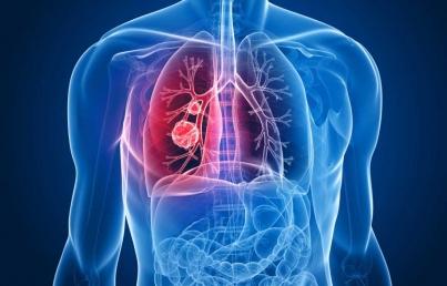 Falta de capacitación médica retrasa o impide diagnóstico de EPOC